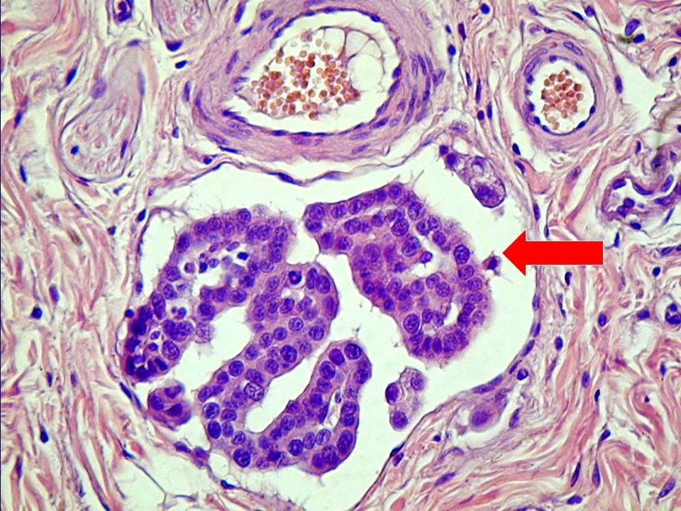 Nyirokérben sodródó emlőmirigyrák embolus (nyíl)