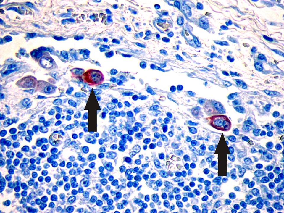 Egysejtes emlőmirigyráksejt áttétek a helyi nyirokcsomóban (nyilak, immunhisztokémiai reakció)