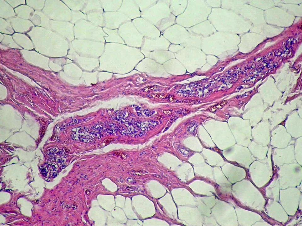 Fehér zsírszövet megszaporodás az emlőmirigyben
