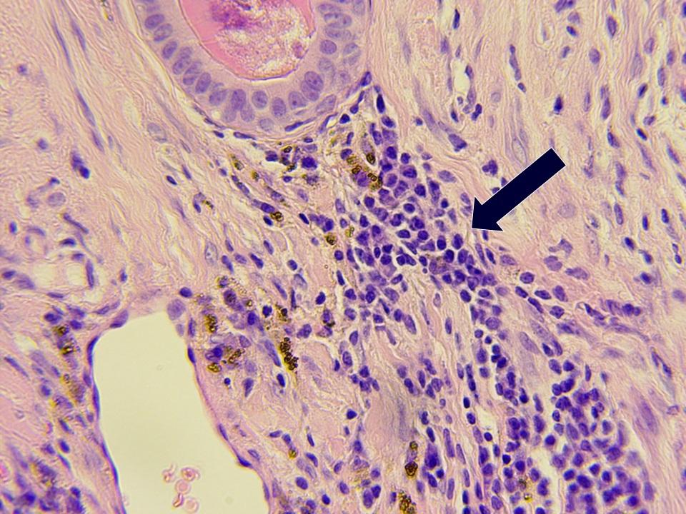 Emlőmirigy-daganat beszüremítő nyiroksejtek (nyíl)