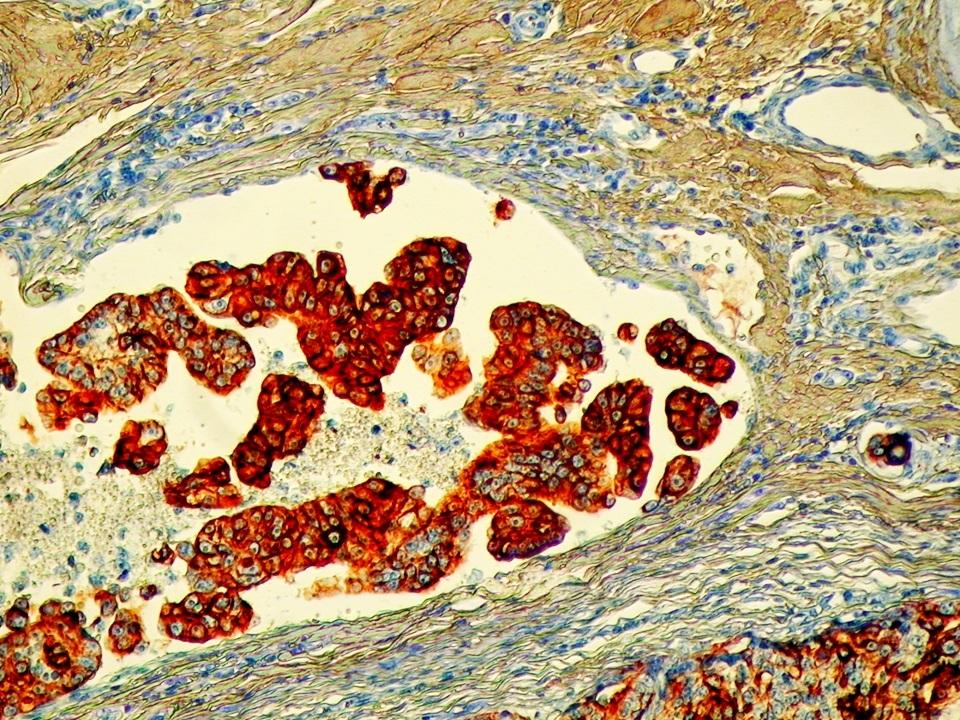Immunreaktivitás a vérérbe tört daganatsejtekben (immunhisztokémiai reakció)