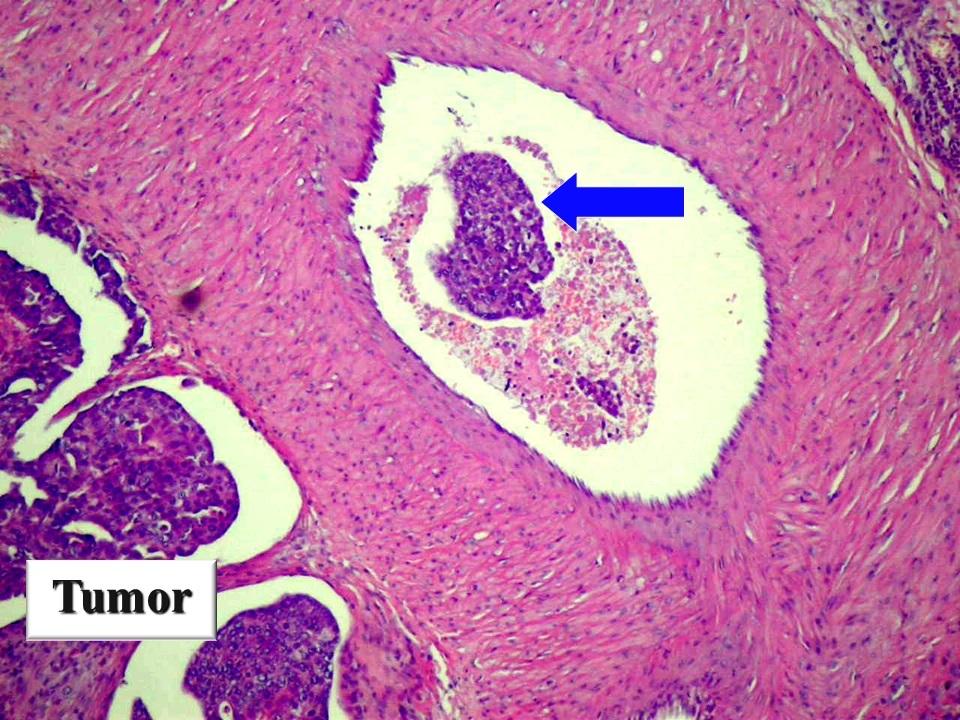 Vérérbe tört emlőmirigy ráksejtek (nyíl)