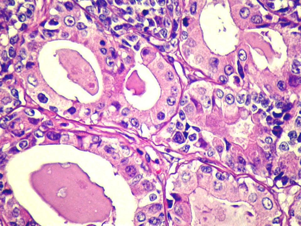 Grade I-es emlőmirigy-carcinoma(rák) a jellegzetes csőszerű, tubularis képződményekkel